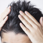 【メンズシーズラボ】メディカルマシン×鍼灸で頭皮を活性!育毛促進コースとは?